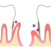 歯が長くなったように感じて歯科医を受診したら歯周病といわれた<体験談>