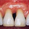 歯周病は万病のもと!歯周病にならない予防法!