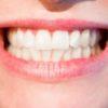 歯科衛生士さんに聞いた「八重歯は抜くべき?」八重歯のメリット・デメリット