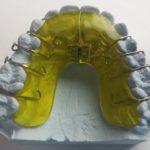大人の歯列矯正増加中!歯垢がたまりにくくなるメリットも!