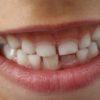 歯が小さい「矮小歯」って改善できるの?