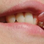 気になる歯茎の腫れ・ぶよぶよ、血を出したほうがいい?