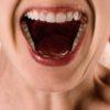 気になる奥歯の銀歯。保険適用で「白い歯」にできるって知ってた?