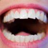 歯の先が透けて見える人、必見! 「第3の歯科疾患」酸蝕歯とは?